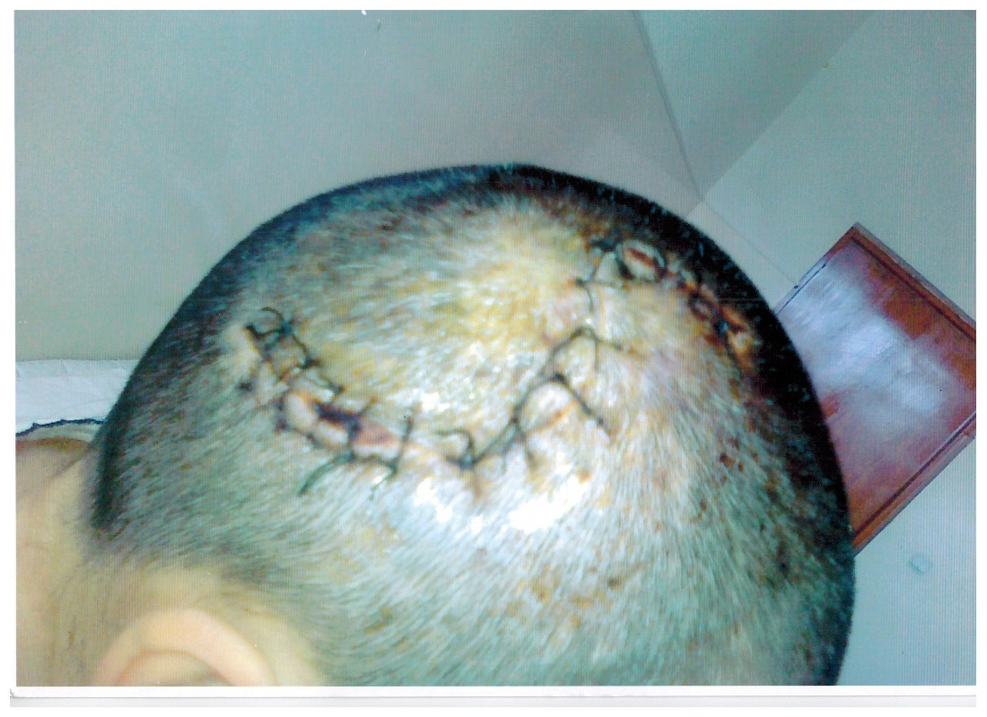 Timagova head injury.jpg